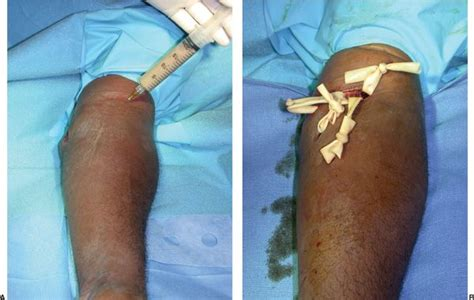 TREATMENT OF HAND INFECTIONS - Plastic surgery